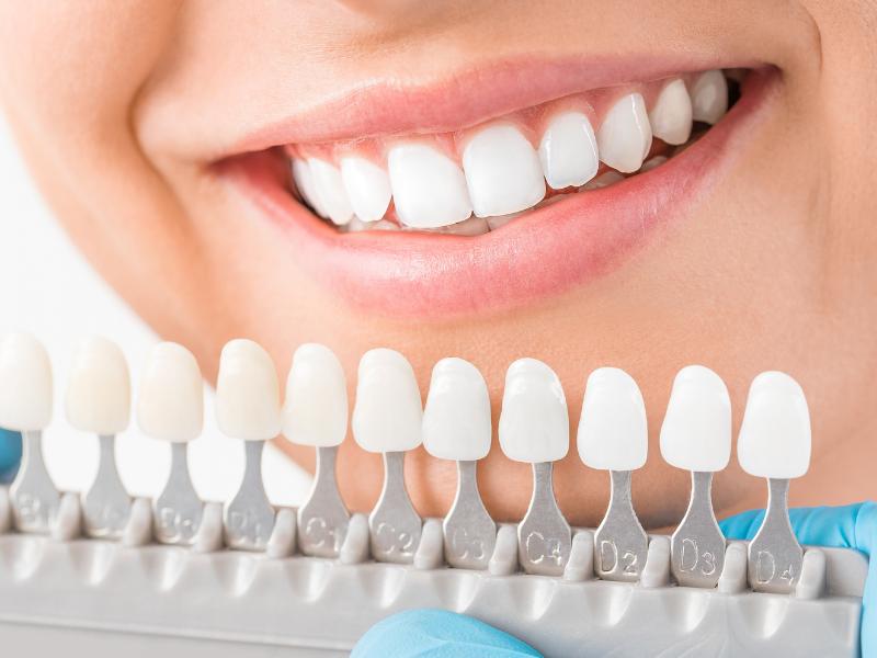 quanto costa sbiancare i denti
